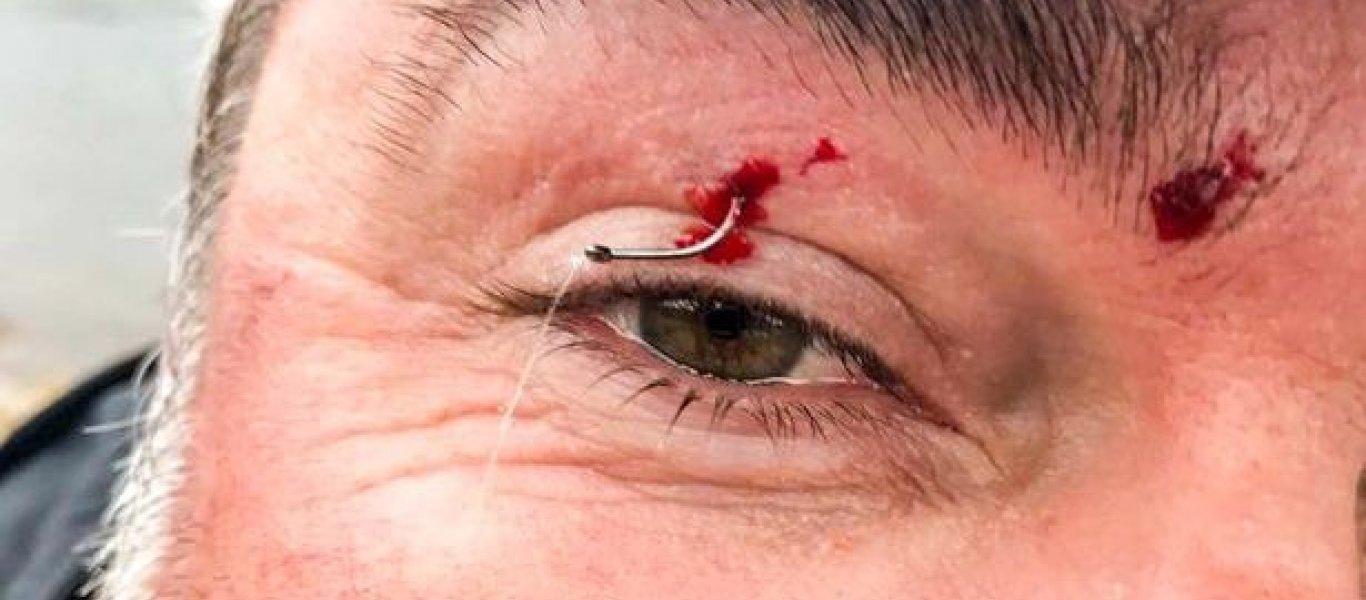 Σκληρό βίντεο: Αγκίστρι καρφώθηκε στο βλέφαρο ψαρά!