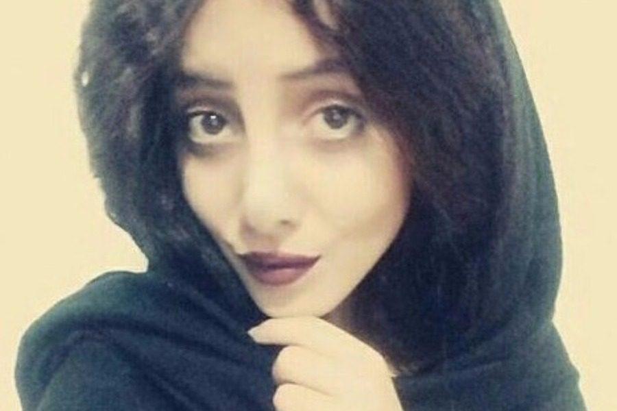 Νεαρή Ιρανή έκανε 50 επεμβάσεις για να μοιάσει στην Anjelina Jolie και το αποτέλεσμα είναι… τρομακτικό!