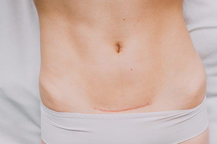 Καισαρική τομή : η επόμενη μέρα !!!