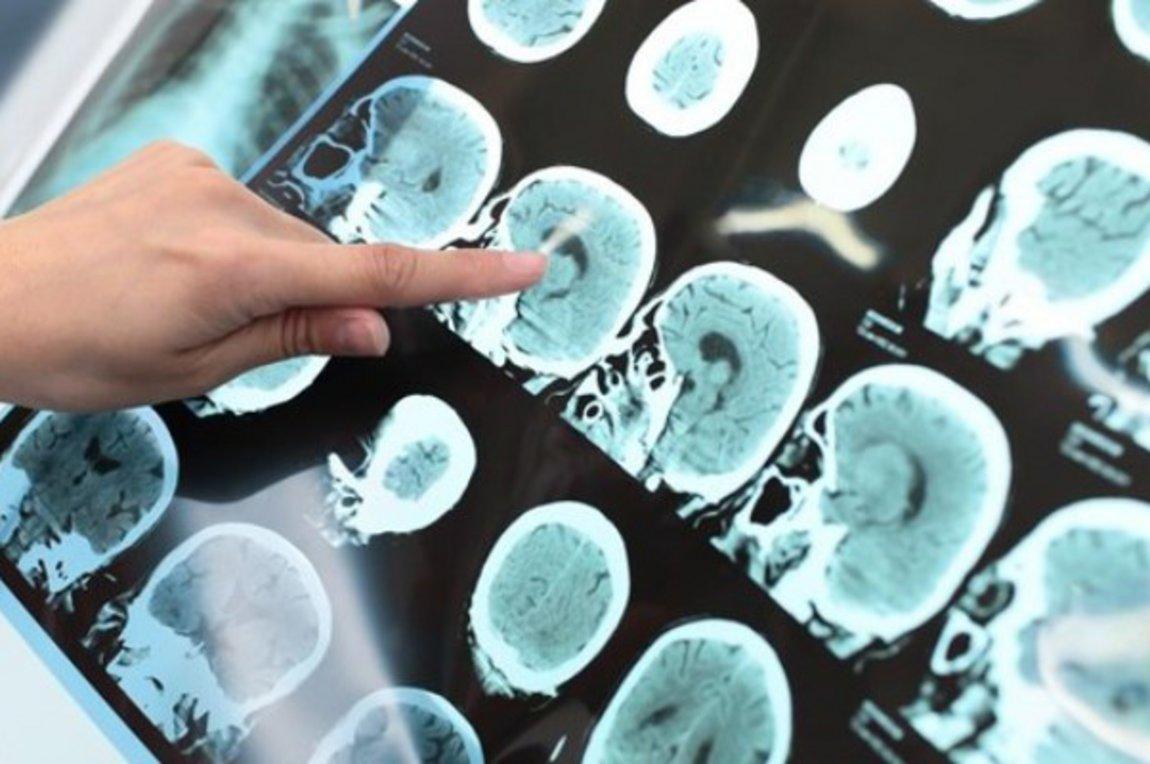 Σύστημα τεχνητής νοημοσύνης προβλέπει το Αλτσχάιμερ αρκετά χρόνια πριν τη διάγνωση από τους γιατρούς