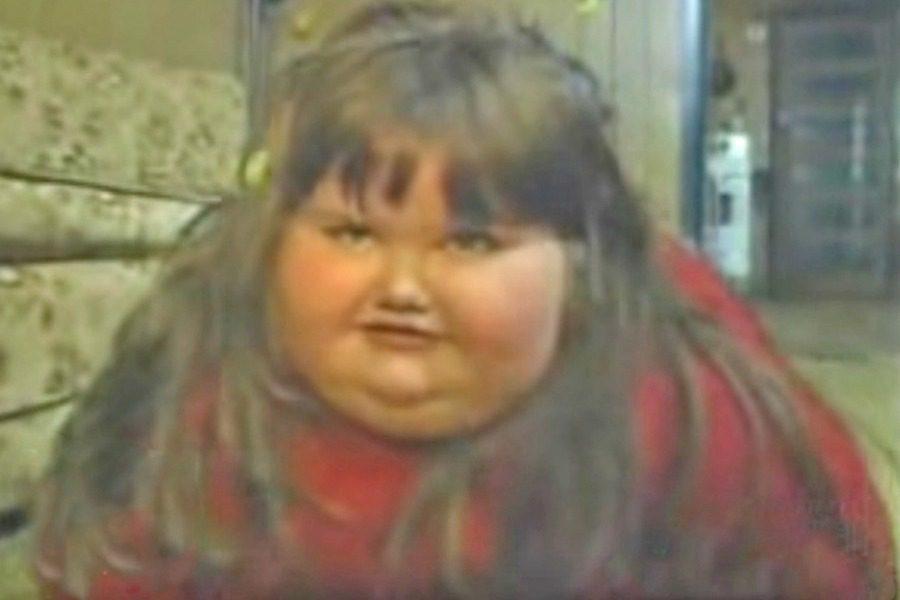 Η μεταμόρφωση της 8χρονης που ζύγιζε 190 κιλά