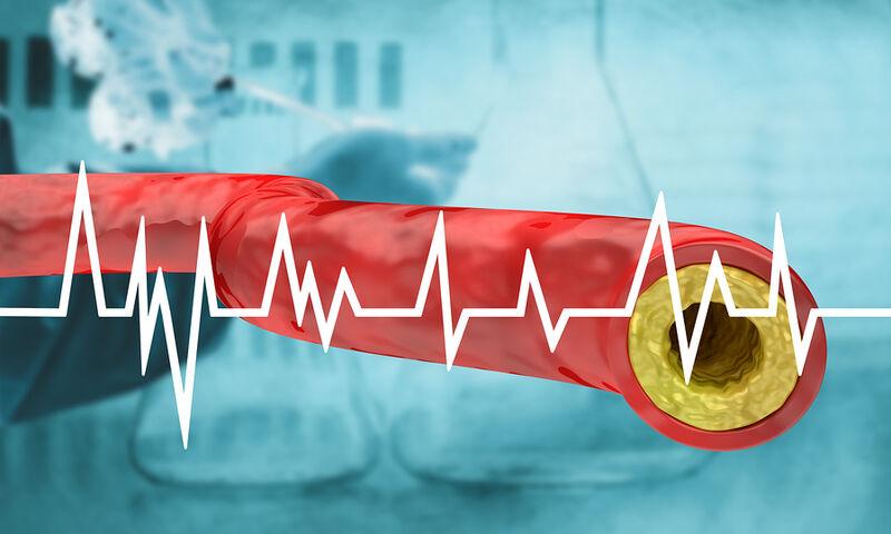 Εξέταση χοληστερίνης: Επιτρέπεται να φάω κανονικά την προηγούμενη μέρα;