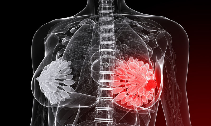 British Journal of Cancer: Νυχτερινή εργασία και καρκίνος του μαστού