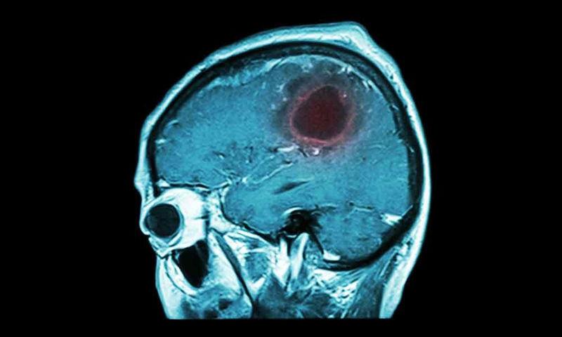 Όγκος στον εγκέφαλο: Τα 7 προειδοποιητικά σημάδια που πρέπει να γνωρίζετε