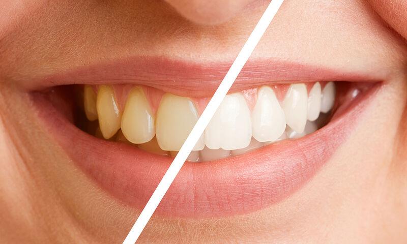 Στοματική υγεία: Κοινά λάθη & μύθοι για τη φροντίδα των δοντιών (video)