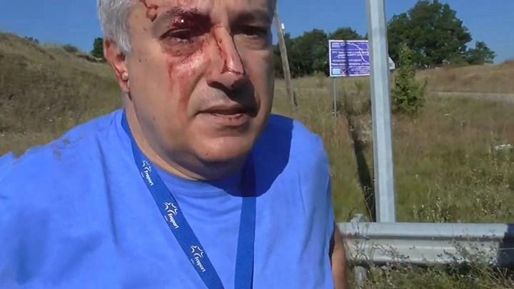 Οι πρώτες δηλώσεις του τραυματία πιλότου του μονοκινητήριου αεροπλάνου – ΒΙΝΤΕΟ