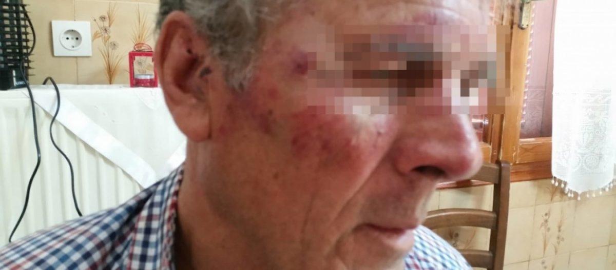Σάμος: Τούρκοι ξυλοκόπησαν 73χρονο που άκουγε εκκλησιαστική μουσική! (φώτο)