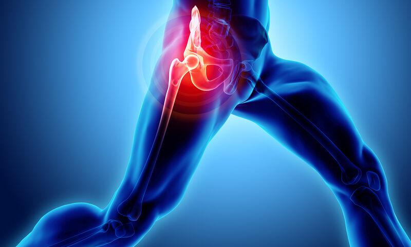 Ολική ή μερική αντικατάσταση ισχίου – Ποιο είδος επέμβασης έχει περισσότερα οφέλη για τον ασθενή;