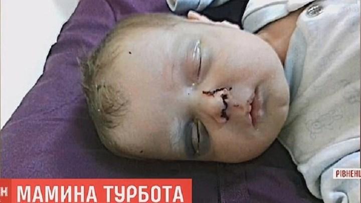 Φρίκη στην Ουκρανία: Μητέρα έσπασε στο ξύλο το ενός μηνός μωρό της – Δίνει μάχη για τη ζωή του – ΦΩΤΟ