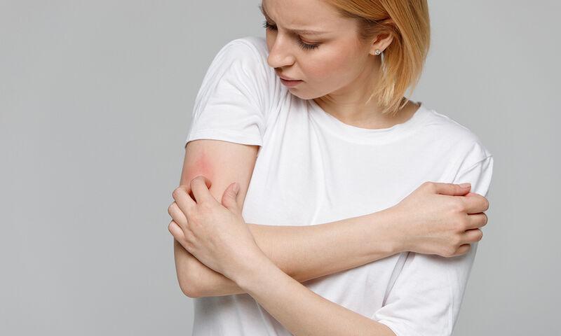 Αλλεργίες: 5 αιτίες που δεν σας περνούν από το μυαλό (εικόνες)