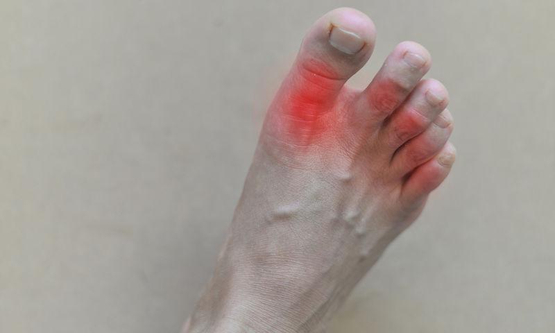 Ουρική αρθρίτιδα: Ο χυμός που προλαμβάνει τους πόνους & πώς θα τον φτιάξετε (pics)