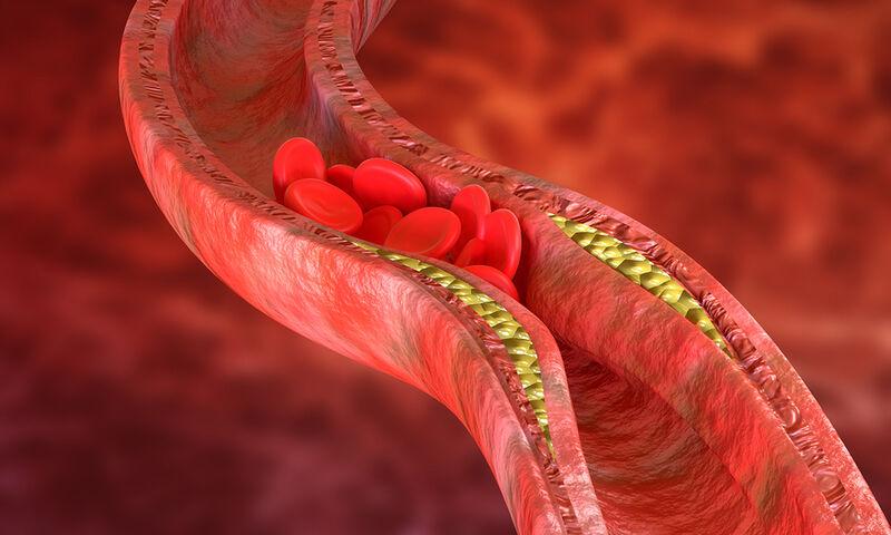 Βουλωμένες αρτηρίες: Προσοχή σε αυτά τα «αθόρυβα» συμπτώματα! (εικόνες)
