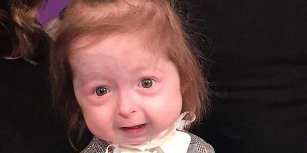 Απίστευτο: 2χρονο κοριτσάκι πάσχει από σπάνια ασθένεια που την γερνάει πρόωρα