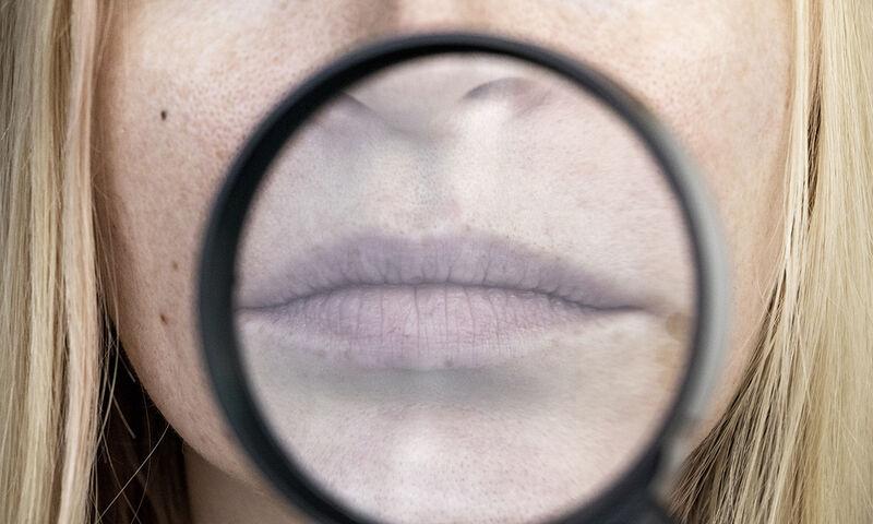 Ξηροστομία: Οι βασικές αιτίες σε εικόνες