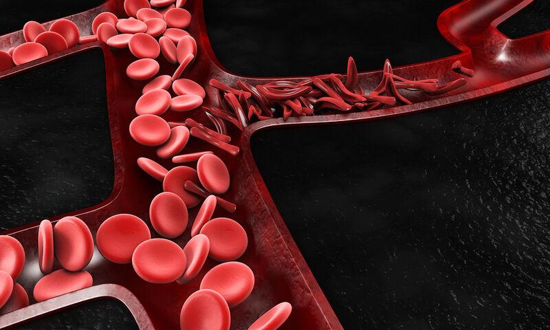 Προβληματική κυκλοφορία αίματος: Τα ορατά σημάδια που δεν πρέπει να αμελήσετε (εικόνες)