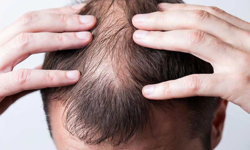 Φαλάκρα: Ποιες είναι οι αιτίες απώλειας των μαλλιών (βίντεο)