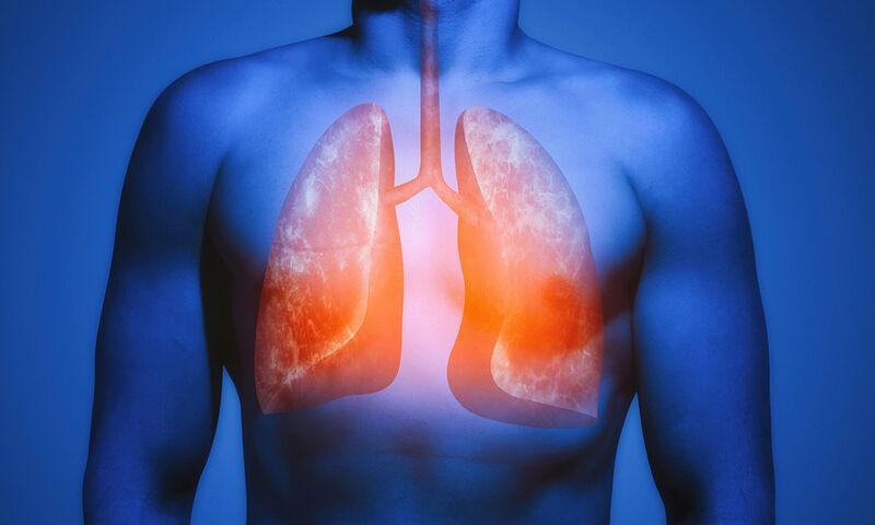 Οι τροφές που «καθαρίζουν» τους πνεύμονες (εικόνες)