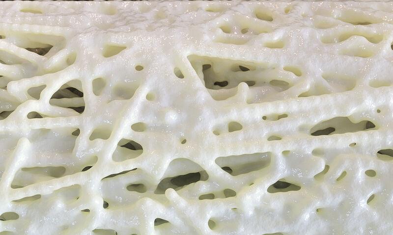 Πώς αναπτύσσεται η οστεοπόρωση