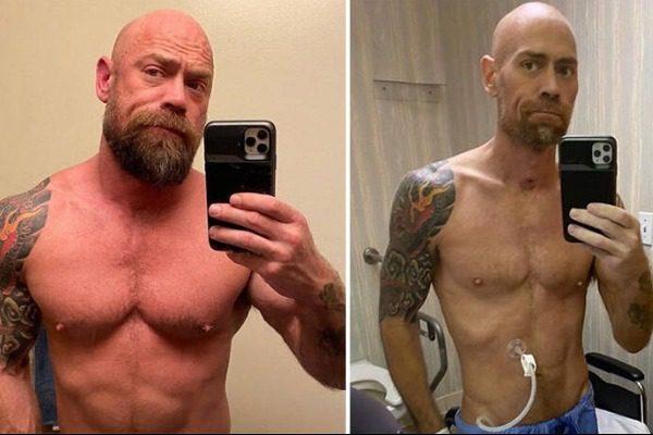 Νόσησε από κορωνοϊό και μετά από 6 εβδομάδες έδειξε την αλλαγή στο σώμα του