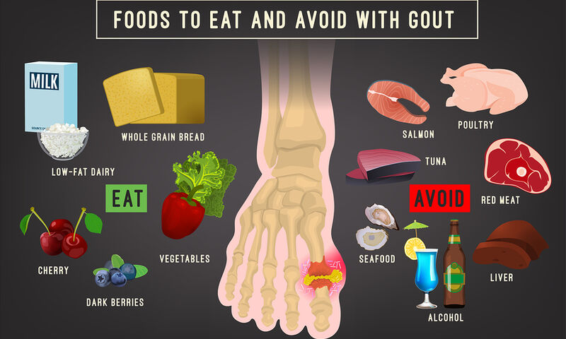 Ουρική αρθρίτιδα: Τι να τρώτε και τι να αποφεύγετε (βίντεο)