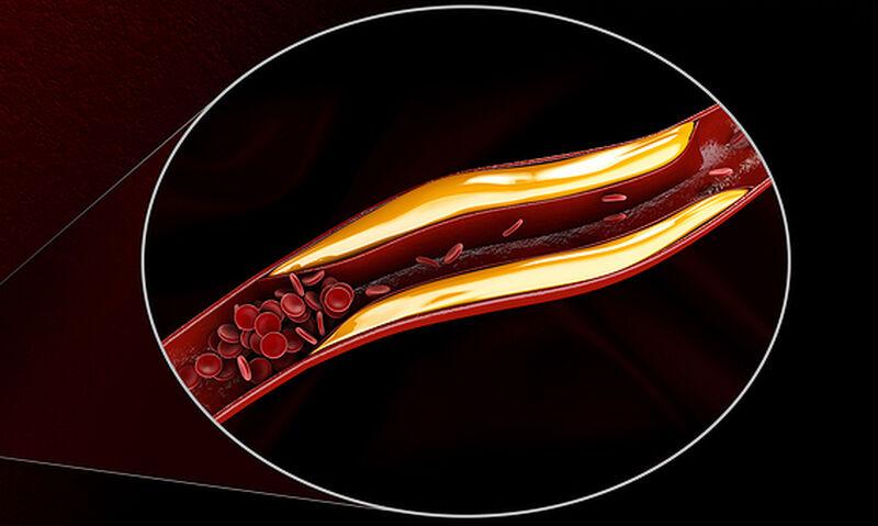 Υψηλή χοληστερόλη: Τι πρέπει να αποκλείσετε από τη διατροφή