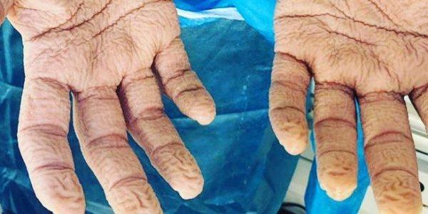 Τεστ κορονοϊού: Τα ζαρωμένα χέρια νοσηλευτή μετά από 8 ώρες – Συγκλονιστική εικόνα