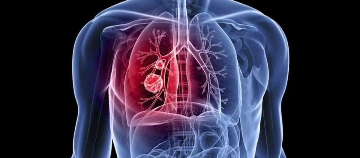 Ο καρκίνος «φοβάται» αυτή την τροφή – Είναι πάμφθηνη και εμείς την αγνοούμε