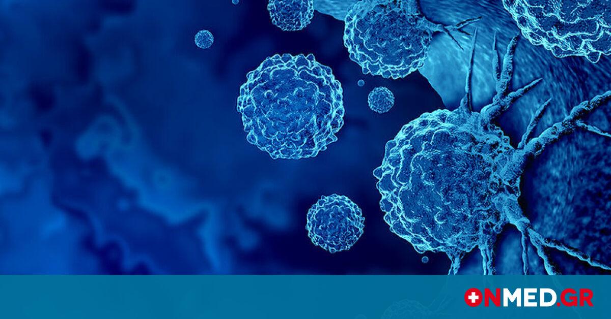 Καρκίνος: Οι ορμόνες που ευνοούν την υποτροπή του