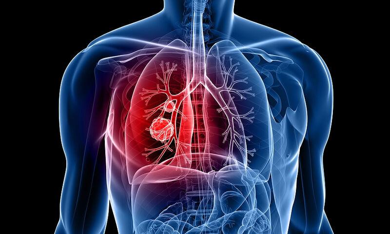 Τι είναι ο Μικροκυτταρικός καρκίνος του πνεύμονα