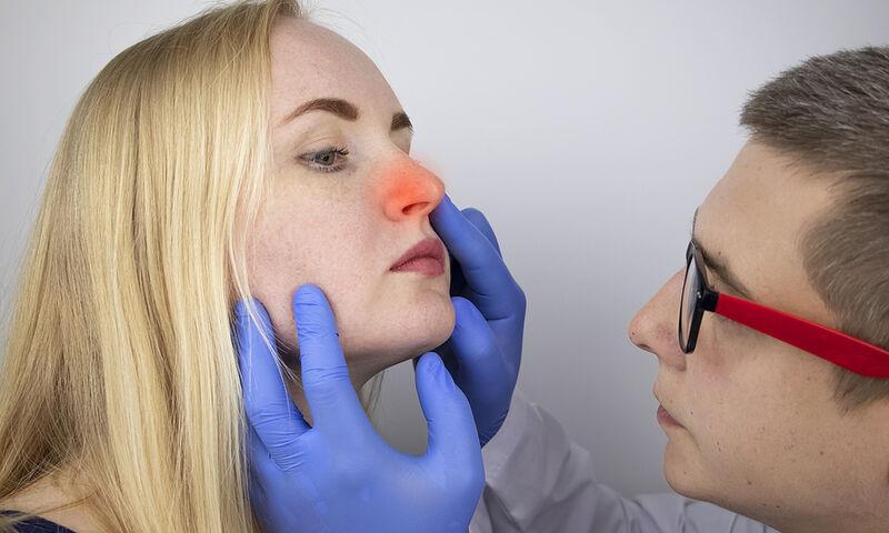Κρεατάκια στη μύτη: Ποιες είναι οι πιθανές επιπτώσεις (εικόνες)