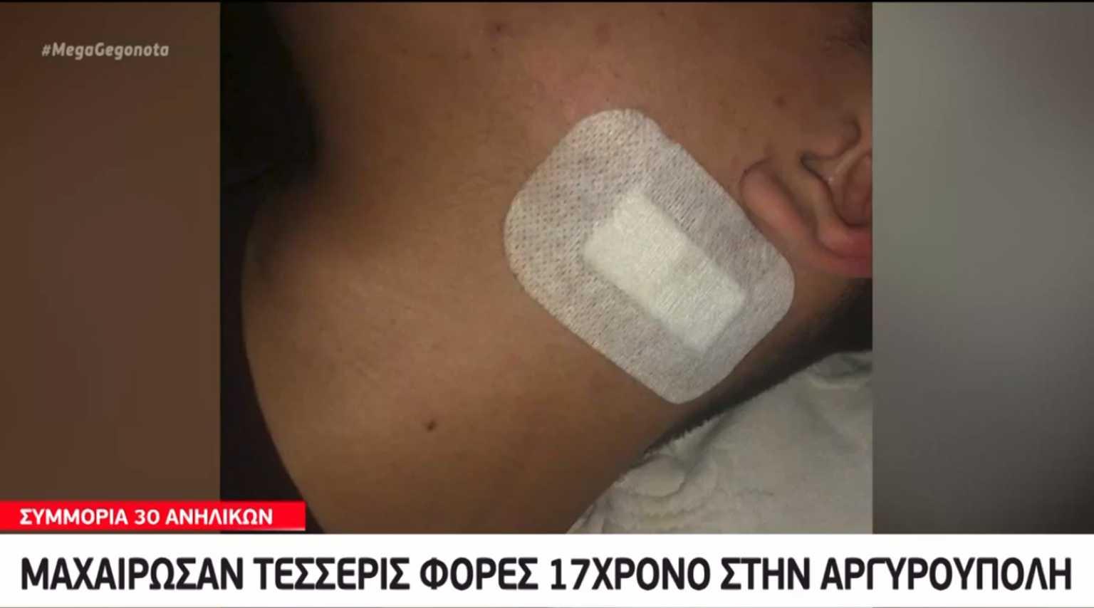 Ανήλικοι «μαχαιροβγάλτες» στην Αργυρούπολη: Για λίγα χιλιοστά η λεπίδα δεν βρήκε την καρωτίδα 17χρονου