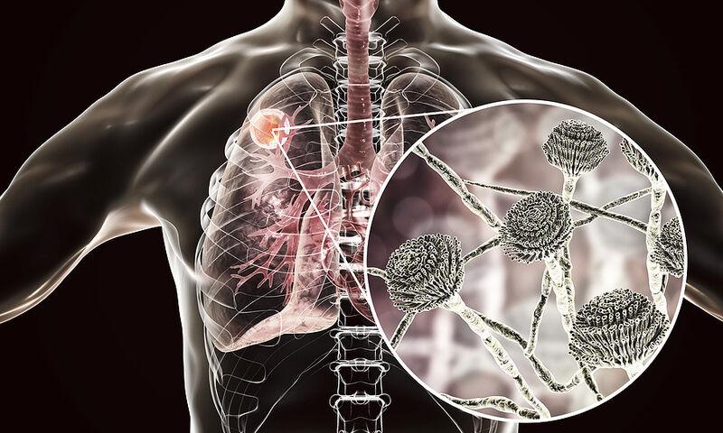 Απόστημα πνεύμονα: Με ποια συμπτώματα εκδηλώνεται (εικόνες)