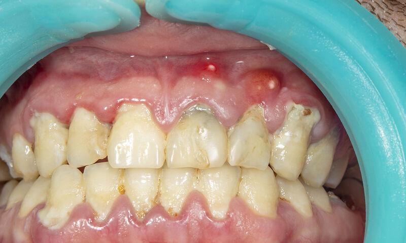 Απόστημα στο δόντι: 4 φυσικοί τρόποι αντιμετώπισης (εικόνες)