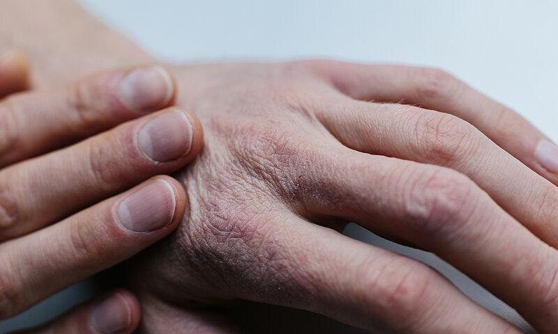 Ξηροδερμία: Με ποια προβλήματα υγείας συνδέεται (εικόνες)
