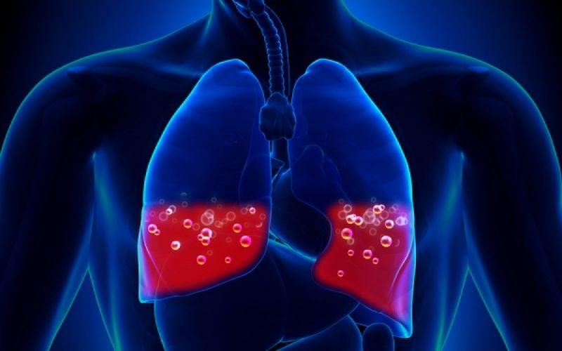 Ποιοι 40άρηδες κινδυνεύουν από πνευμονική εμβολή