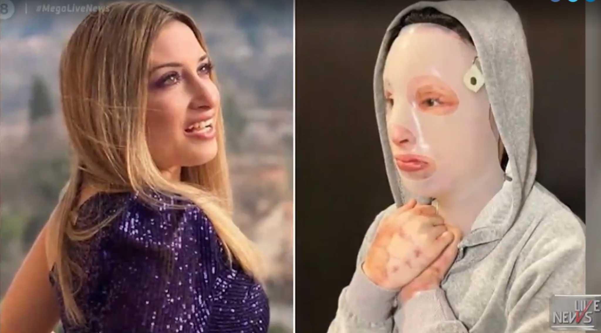Επίθεση με βιτριόλι: Η Ιωάννα δημοσίευσε τα δώρα που της έστειλαν παιδάκια
