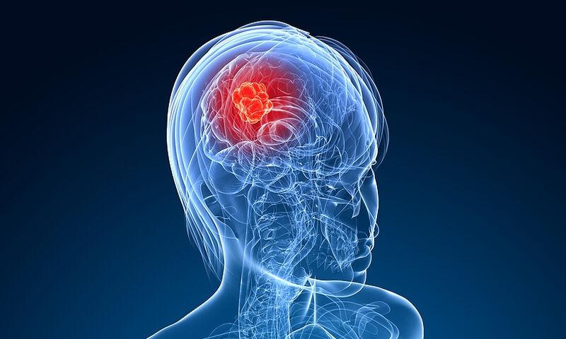 Καρκίνος στο κεφάλι: Κοινά συμπτώματα που δεν πρέπει να αγνοείτε (εικόνες)