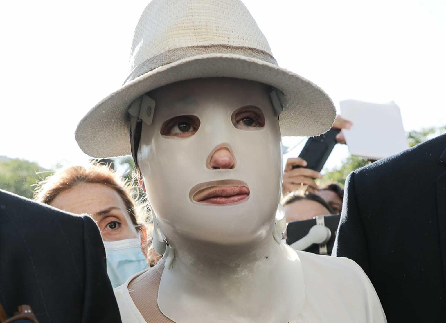 Επίθεση με βιτριόλι: «Η Ιωάννα Παλιοσπύρου θα βγάλει τη μάσκα όταν αφεθεί ελεύθερη η κατηγορούμενη»