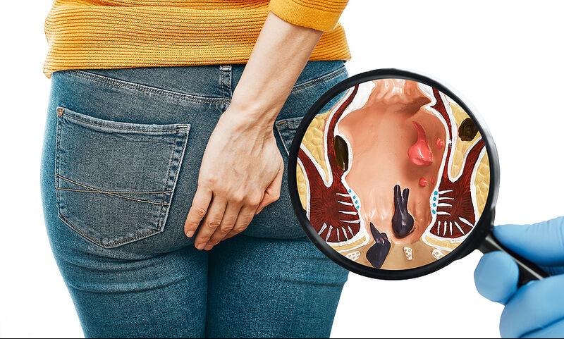 Αιμορροΐδοπάθεια: Ποιοι κινδυνεύουν περισσότερο (εικόνες)