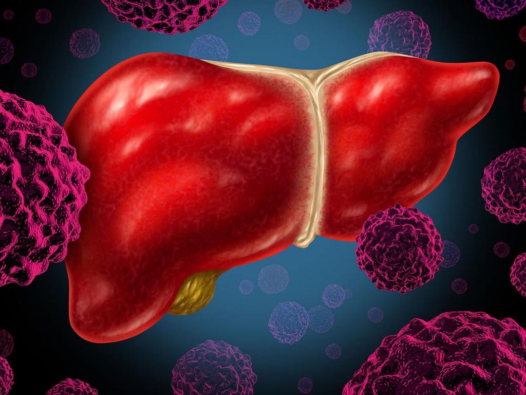 Καινοτόμες θεραπείες και τρόπος ζωής οι λύσεις για τον καρκίνο ήπατος