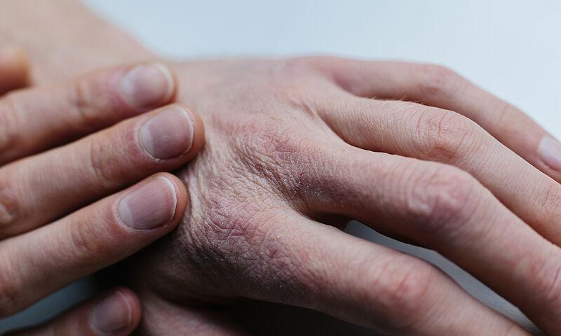 Παθήσεις δέρματος: Ποιες επιδεινώνονται με το κρύο (εικόνες)